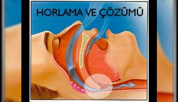 uyku apnesi,uykuda tıkanma,apne,uykuda nefes durması,uykuda nefesin kesilmesi,uyku bozuklukları,horlama tedavisi,horlamanın çözümü,horlamadan nasıl kurtulunur,horlama cerrahisi,horlama ameliyatı,horlama,Snoring (Symptom),tıkanma