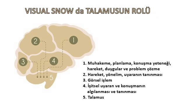 visual-snow-da-talamusun-rolü
